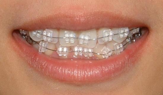 Điều trị vẩu bằng niềng răng mắc cài