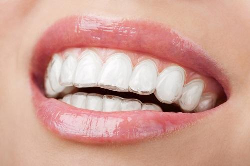 Niềng răng trong suốt bao nhiêu tiền? 3