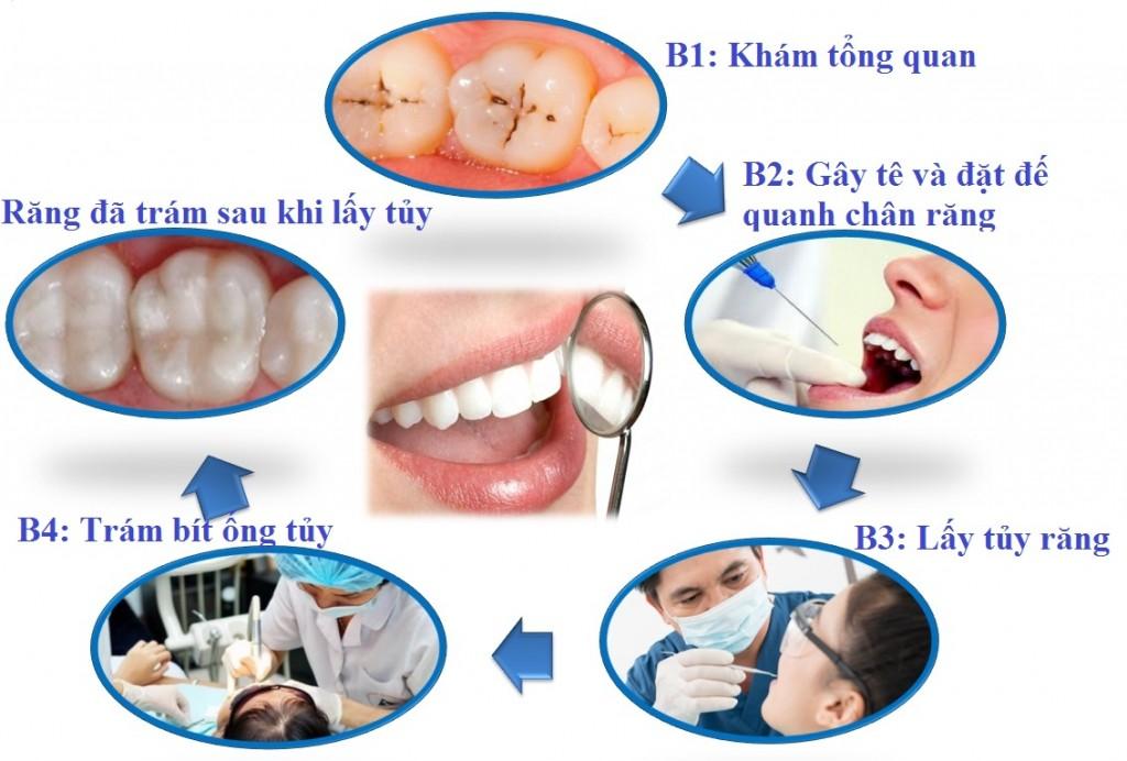 Tại sao nên hạn chế lấy tủy khi làm răng sứ? 2