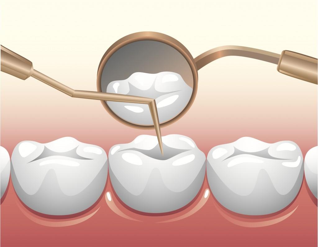 Tại sao nên hạn chế lấy tủy khi làm răng sứ? 1