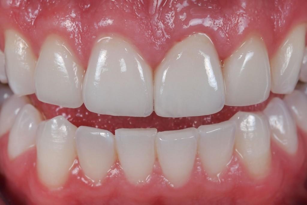 Vì sao chi phí thay răng sứ cao ?