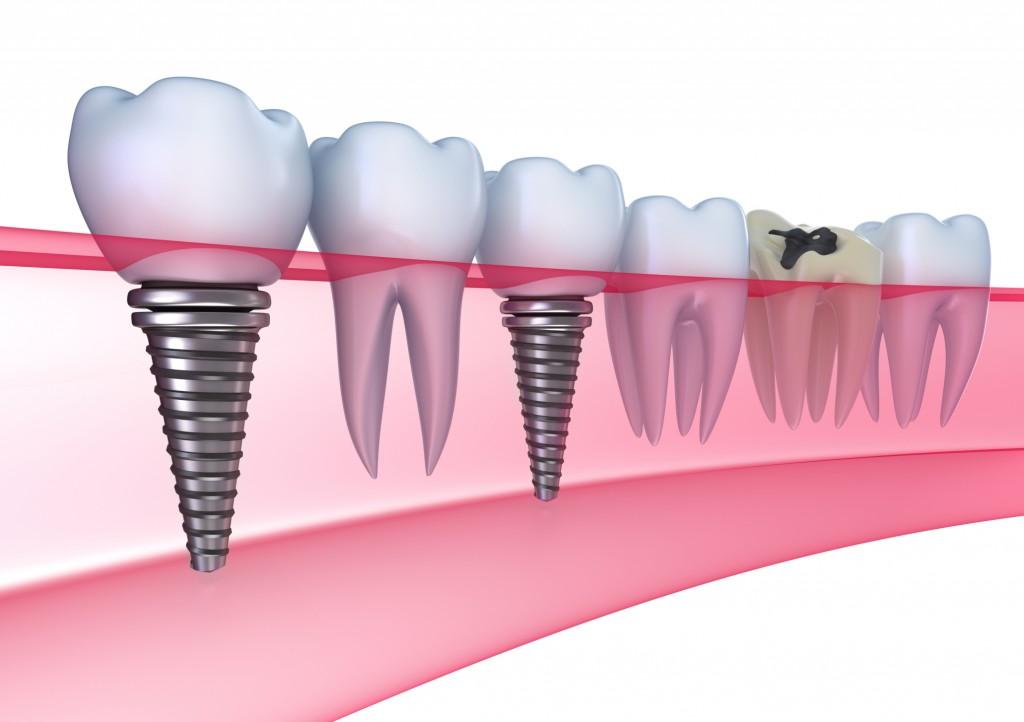 Cấy ghép implant khi mất toàn bộ răng 2