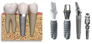 Cấy ghép răng implant bao nhiêu ?