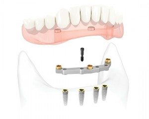 Lựa chọn cấy ghép implant 4S để trồng răng