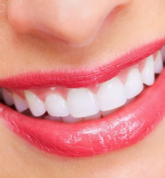 Bọc răng sứ cho răng hàm