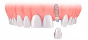 Implant và chi phí trồng răng implant