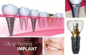 Phục hình implant có đau không ?