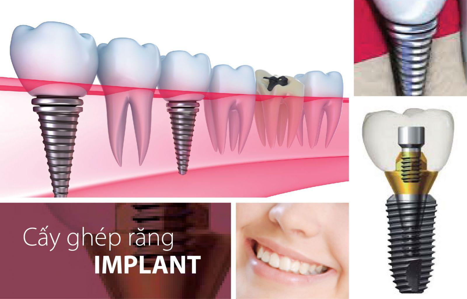 Quy trình cấy ghép implant ra sao? 1