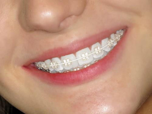 Giá các loại niềng răng mắc cài 3