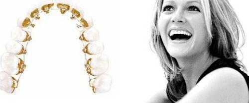 Niềng răng mặt trong chi phí bao nhiêu? 1