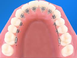 Niềng răng mặt trong chi phí bao nhiêu? 2