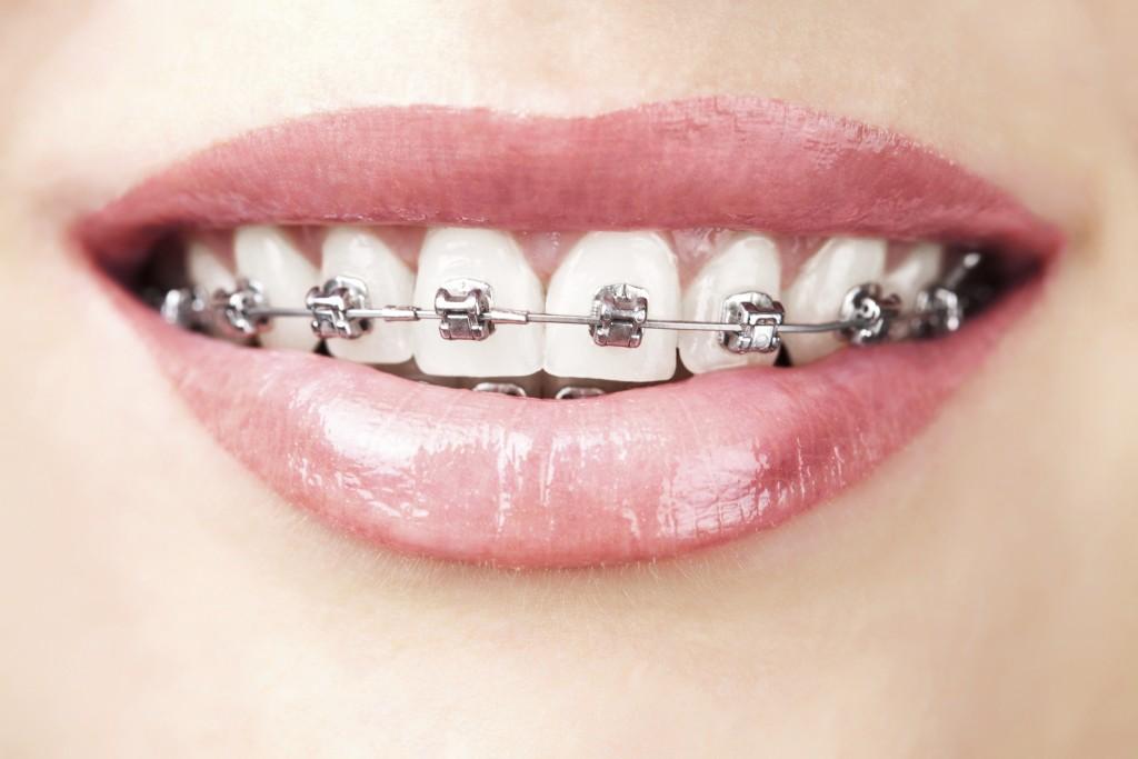Niềng răng mắc cài inox là gì? 1