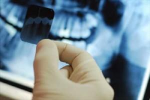 Quy trình thực hiện hàm phủ trên Implant