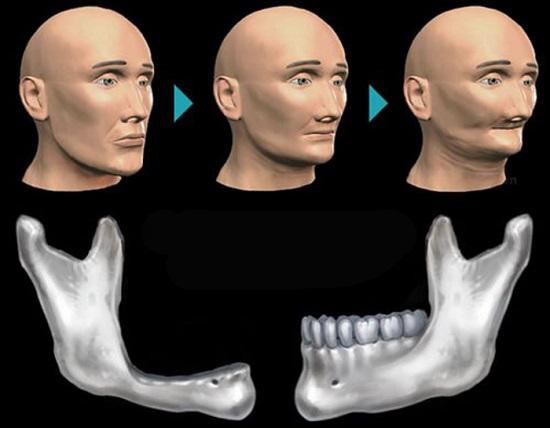 Ảnh hưởng của thuốc lá đến cấy ghép implant 2