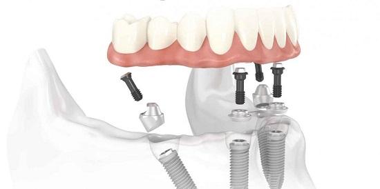 Kỹ thuật cấy ghép Implant 4S 3