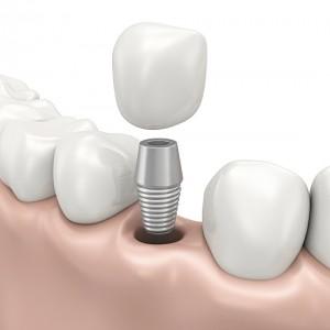 Kỹ thuật cấy ghép Implant 4S