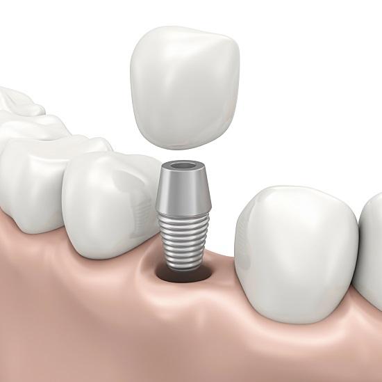 Kỹ thuật cấy ghép Implant 4S 1