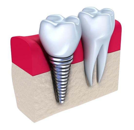 Cấy ghép implant có ảnh hưởng đến xương hàm? 1