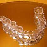 Niềng răng không mắc cài hiệu quả như thế nào ?