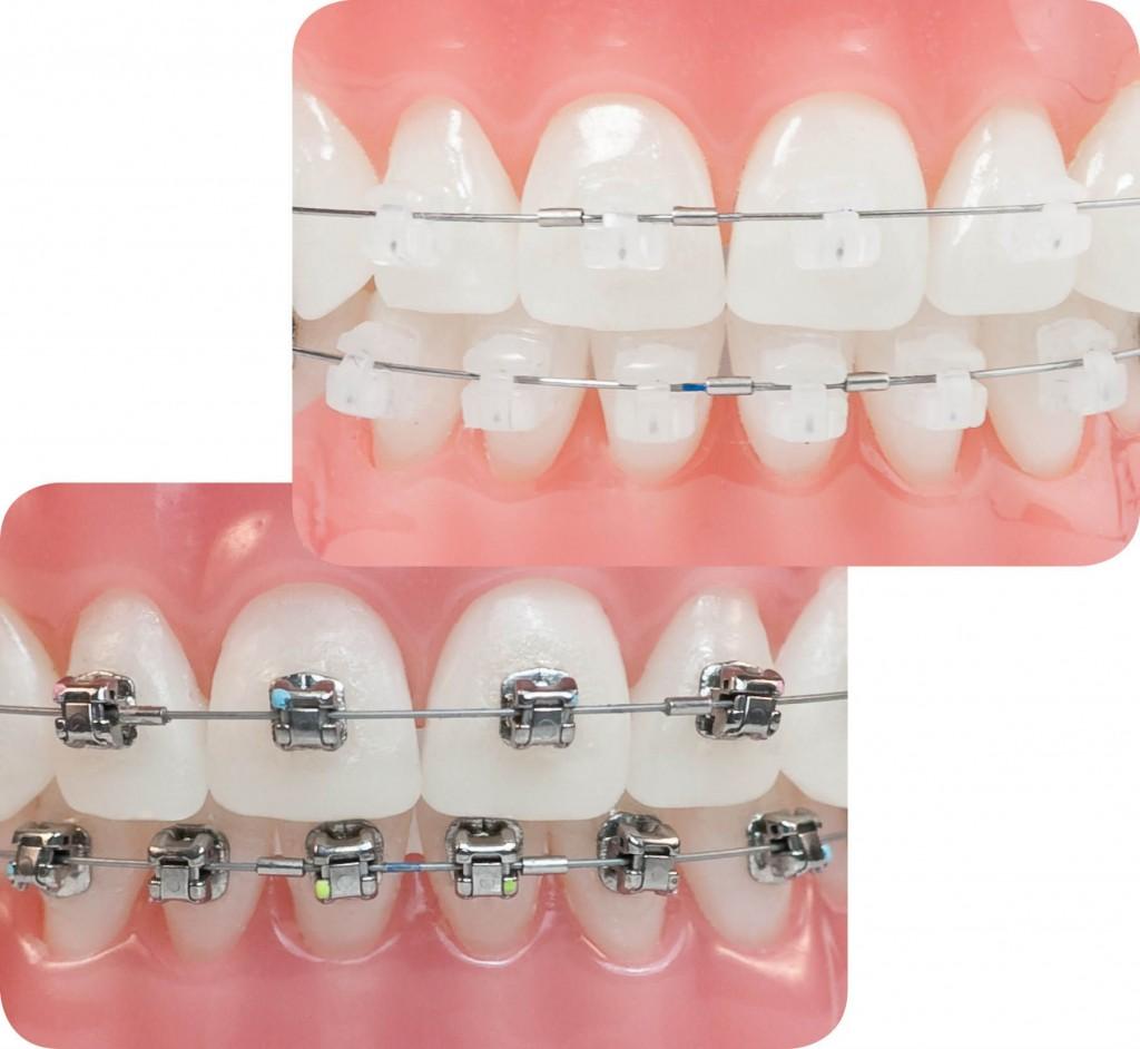 Giá các loại niềng răng mắc cài 1