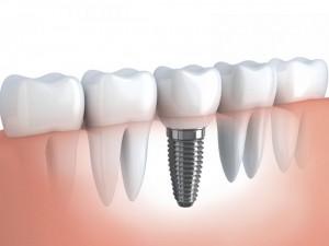 Cấy ghép implant có ảnh hưởng đến xương hàm ?