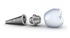 Các cách vệ sinh răng miệng sau cấy ghép Implant
