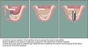 Tại sao có người phải ghép xương khi cấy ghép Implant?