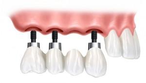 Cấy ghép Implant có đảm bảo an toàn ?