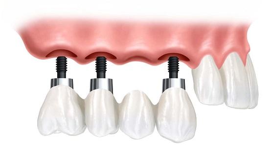 Bị mất nhiều răng có cần cấy ghép nhiều trụ implant? 1