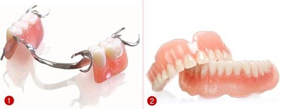 Độ tuổi nào phù hợp để cấy ghép implant? 2