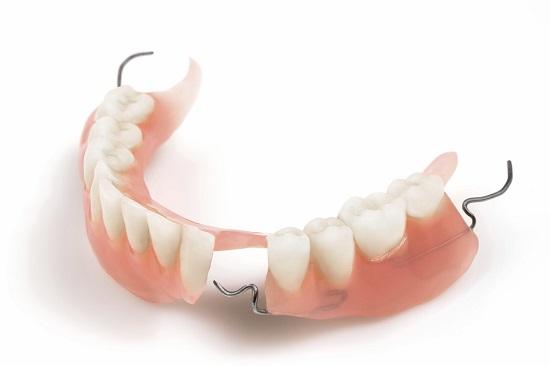 Giải pháp cho những người bị mất nhiều răng 1