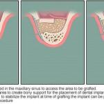Mini implant được chỉ định cho trường hợp nào?