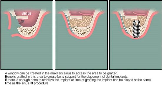 Mini implant được chỉ định cho trường hợp nào? 1