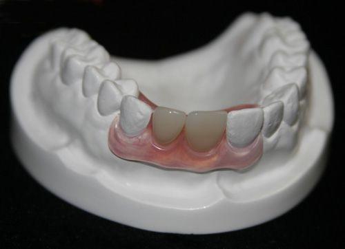 Trồng răng giá bao nhiêu tiền?-2