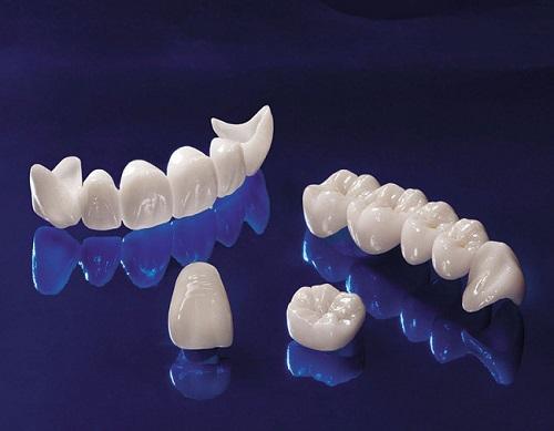 Trồng răng giá bao nhiêu tiền?-3