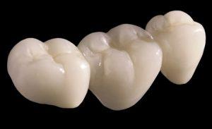 Chi phí bọc răng sứ