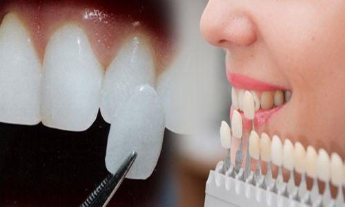 Răng sứ veneer tốt không?-1