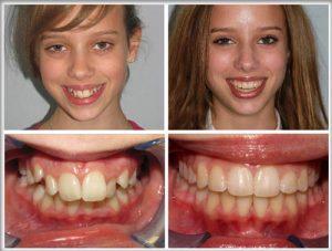 Điều trị răng hô bằng niềng răng