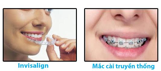 Niềng răng hô không mắc cài