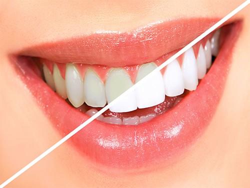 Theo bạn răng vàng có tẩy trắng được không? 1