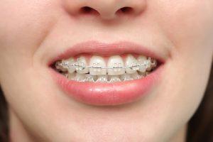 Niềng răng lệch lạc sử dụng công nghệ tiên tiến 3
