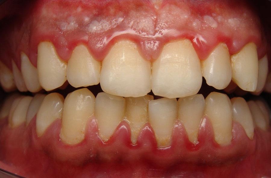 Bị viêm chân răng điều trị như thế nào cho hiệu quả? 1