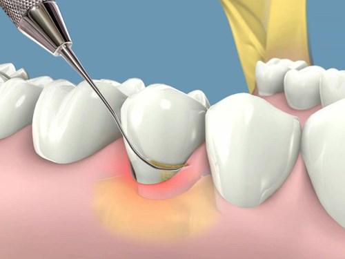 Bị viêm chân răng điều trị như thế nào cho hiệu quả? 3