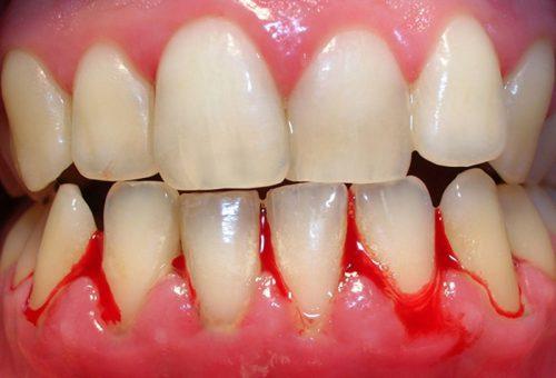 Chảy máu chân răng gây hôi miệng phải làm sao? 1