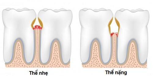 Chảy máu chân răng gây hôi miệng phải làm sao? 2