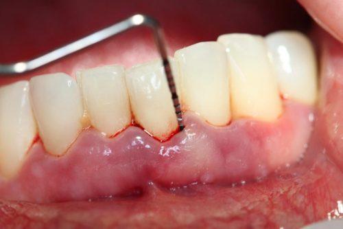 Chảy máu chân răng gây hôi miệng phải làm sao? 3