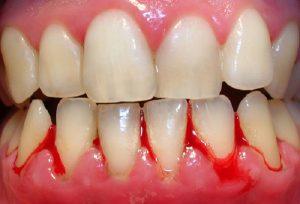 Chảy máu chân răng là biểu hiện của bệnh gì? 1