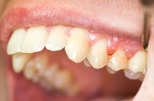 Chảy máu chân răng là biểu hiện của bệnh gì? 2