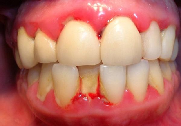 Hiện tượng chảy máu chân răng là thiếu chất gì? 1