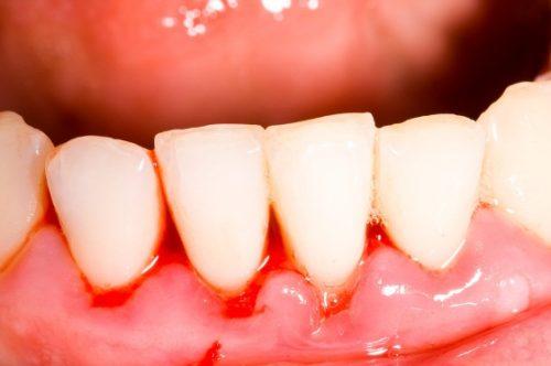 Chảy máu chân răng thường xuyên cảnh báo bệnh gì? 1